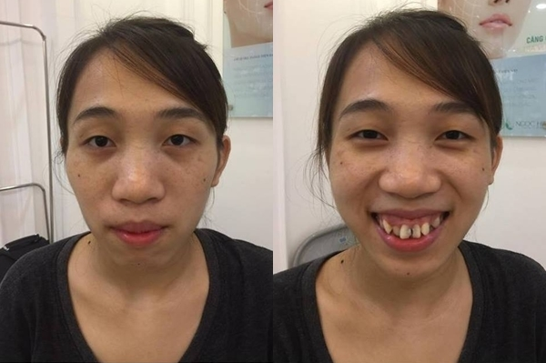 Hình ảnh Bàn Thúy Toàn trước khi phẫu thuật thẩm mỹ.