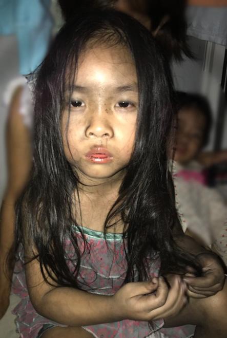 Bé lớn 4 tuổi nhà anh Trần Quyết sau khi được mẹ cứu thoát. Ảnh: T.Q.