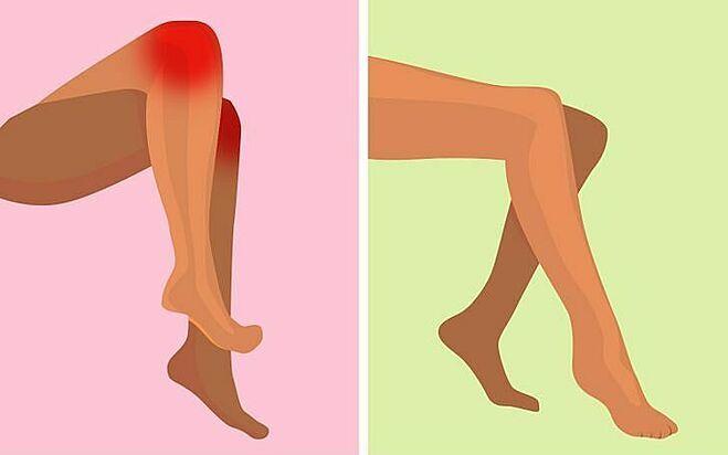 Ngồi vắt chéo chân dễ khiến đau khớp gối.