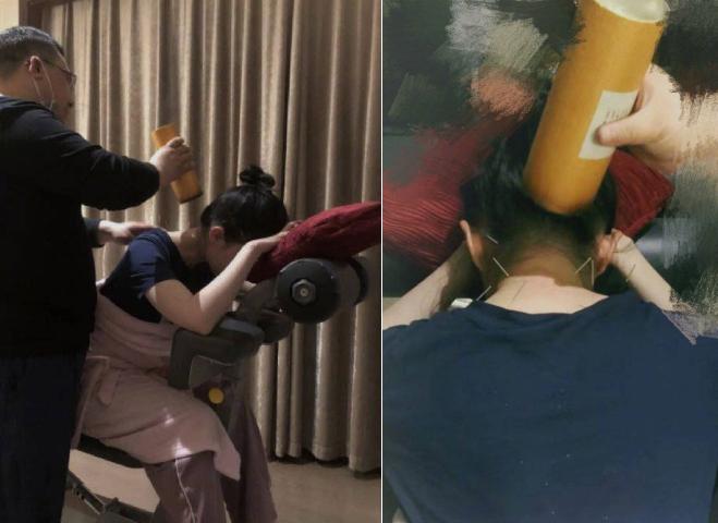 Lưu Diệc Phi điều trị cổ vai gáy.