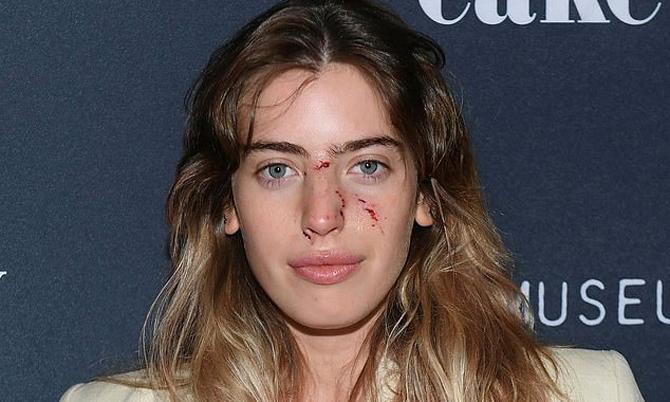 Diễn viên Hollywood bị chó cắn trước giờ lên thảm đỏ